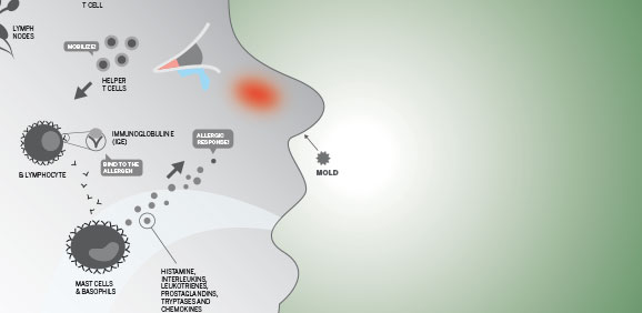 Infographic: The Anatomy of an Allergy Attack