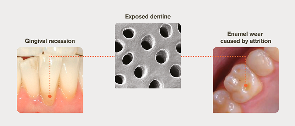 Causes of exposed dentine