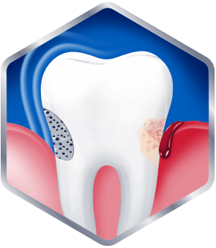 Graphic of sensitive tooth with bleeding gums