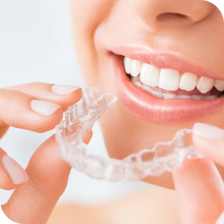 Woman using at home tooth whitening treatment for sensitive teeth
