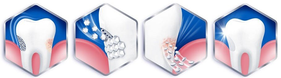 Sensitive teeth relief imagery