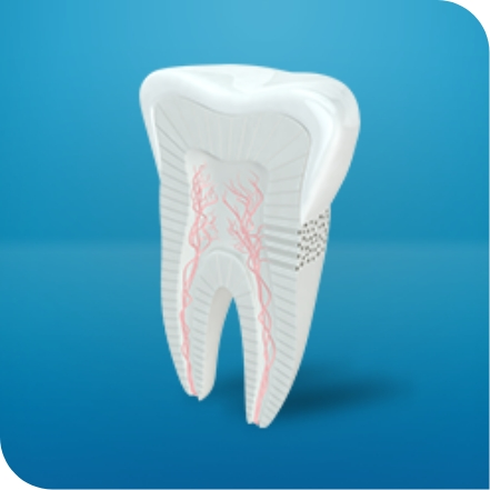 Tooth highlighting difference between cavity and sensitivity