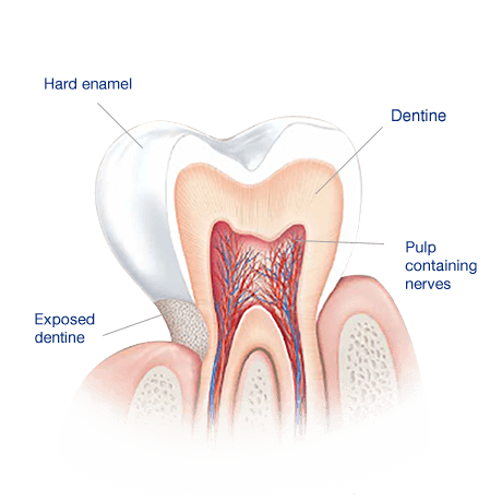 Tooth Enamel:  The layer of protection for our teeth