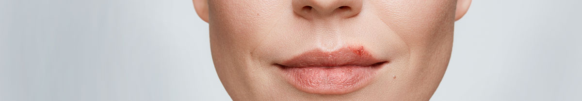 Close up of a woman with a cold sore on her lip